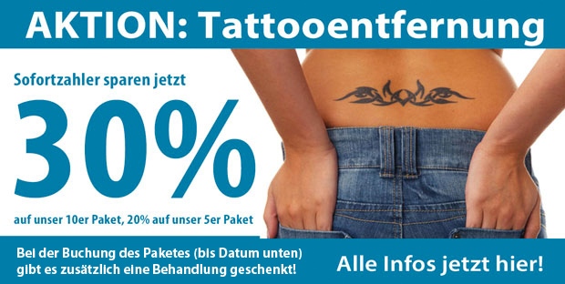 Tattooentfernung Saarland Aktion 2017